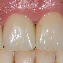 Ceramică integrală și zirconiu ceramică grup incisiv maxilar.